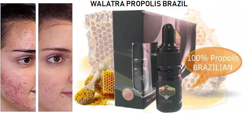 Cara Mengobati Jerawat Dengan Walatra Propolis Brazil