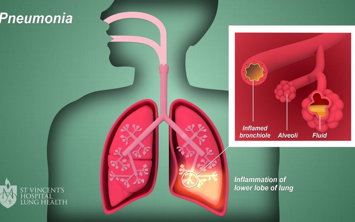 Wajib Tahu! Ini Gejala Dan Penyebab Penyakit Pneumonia